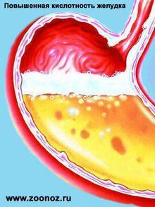 Как определить кислотность желудка