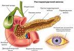 Симптомы рака поджелудочной железы