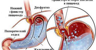 Можно ли вылечить рефлюкс эзофагит