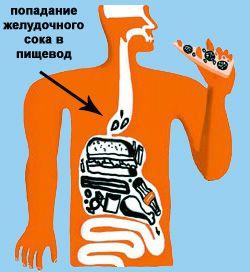 Рефлюкс-эзофагит: диета