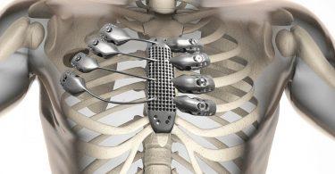 Симптомы саркомы кости у человека