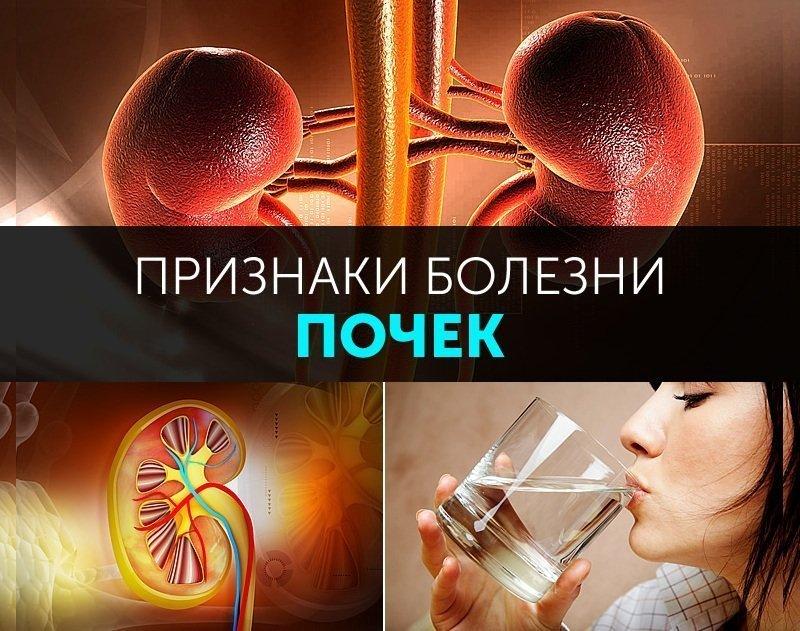 Симптомы болезни почек у женщин и мужчин