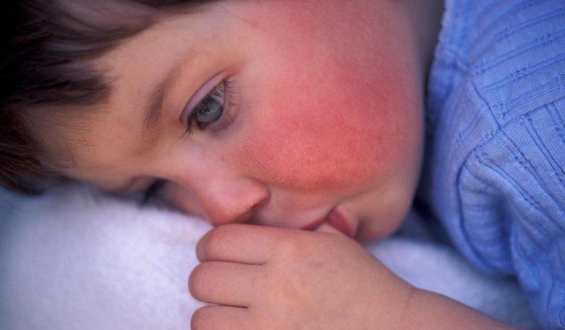 Как (чем) лечить сыпь у ребенка