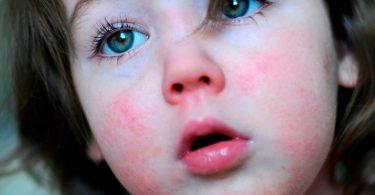 Симптомы скарлатины у детей и лекарство от скарлатины