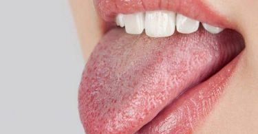 Сухость во рту после еды