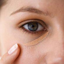 Как избавиться от хронических синяков под глазами
