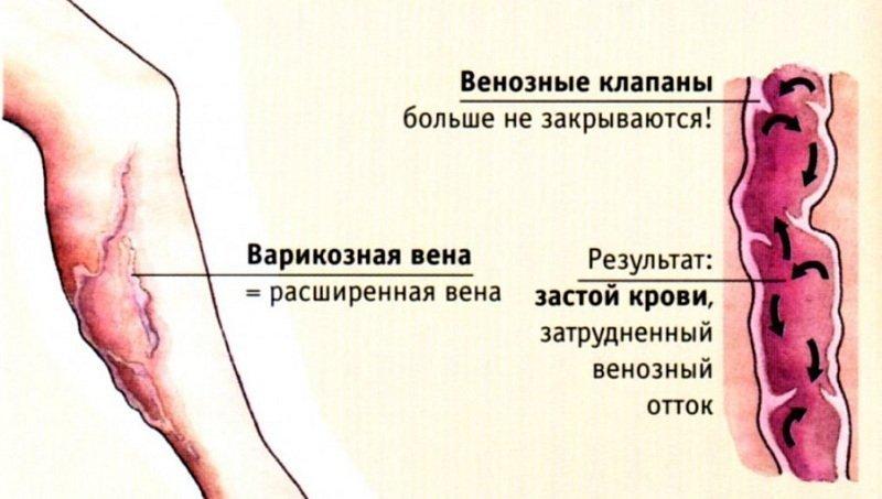 Первые признаки тромбофлебита