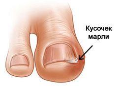 Как обрезать вросший ноготь