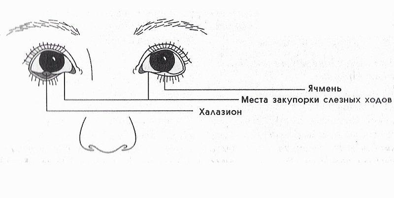 Как лечить ячмень на глазу быстро