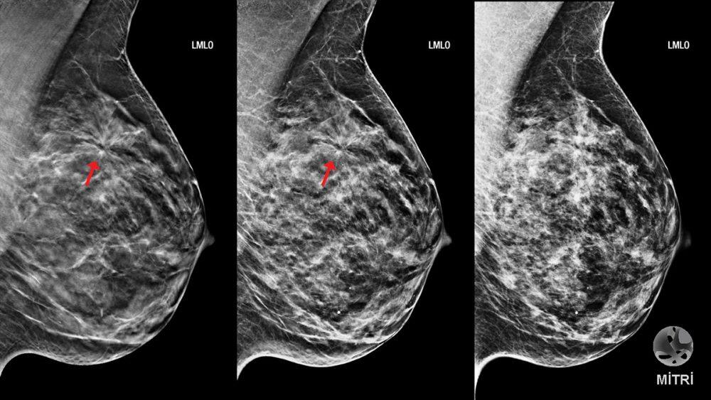 Сколько живут с раком груди