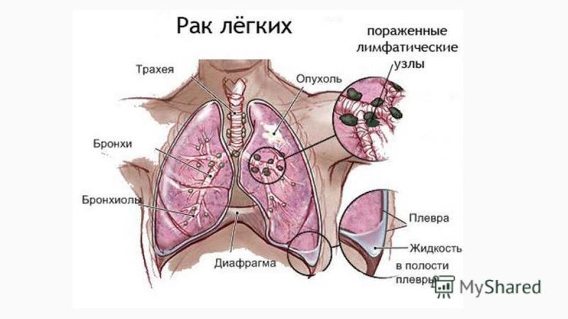 За какое время развивается рак легких