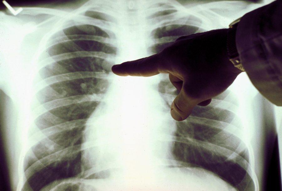 Через сколько лет курения развивается рак легких
