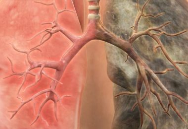 Рак легких - симптомы у взрослых