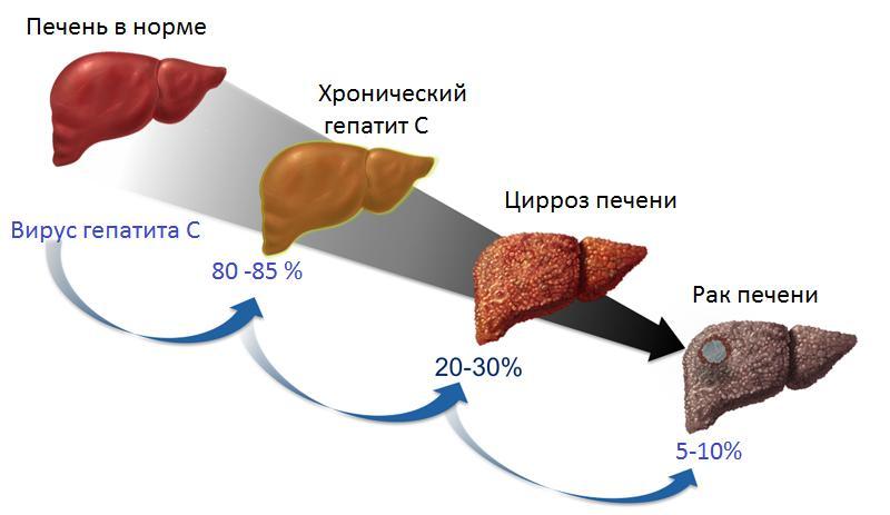 Как проявляется рак печени