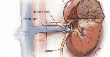 Первые симптомы рака почки