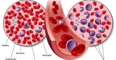 Признаки рака крови