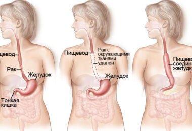 Как проявляется рак пищевода в начальной стадии