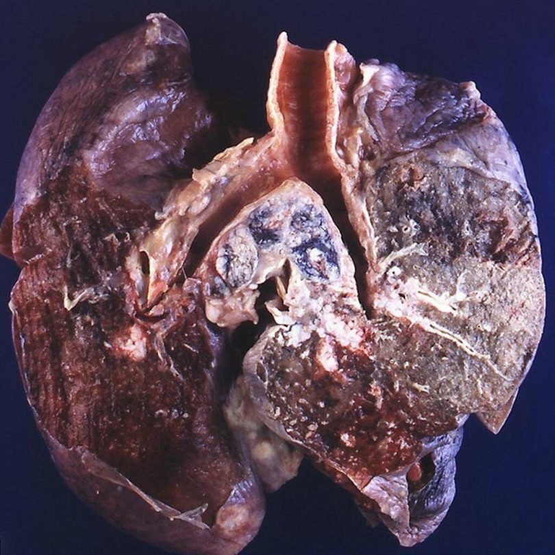 Рак лёгких-Фото лёгких