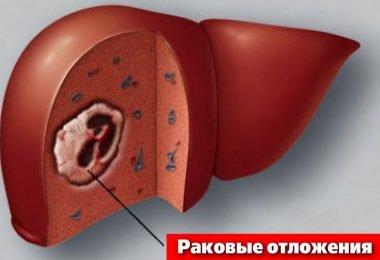 Рак печени схематично